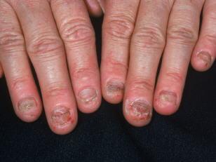 обкусанные ногти