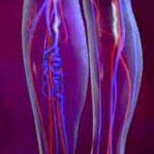 Профилактика варикоза вен на ногах.