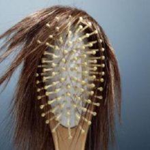 Почему сильно выпадают волосы— когда пора бить тревогу