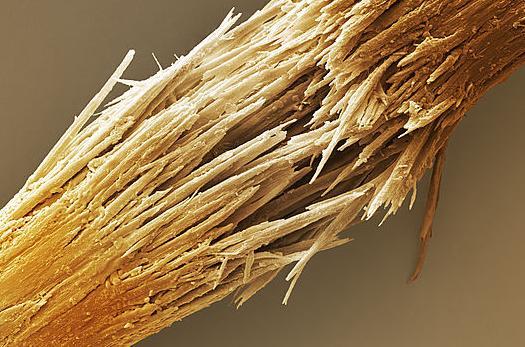 поврежденный волос