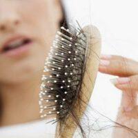 Выпадение волос у женщин— лысеют не только парни