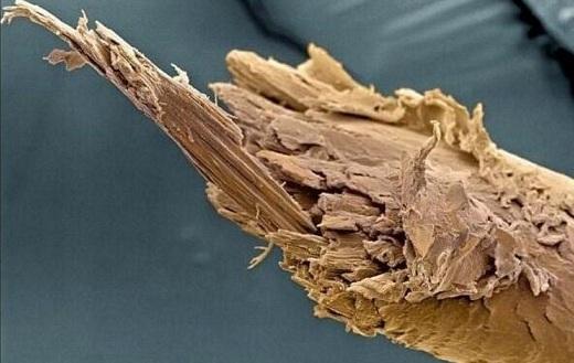 povrezhdennyiy-volos-pod-mikroskopom