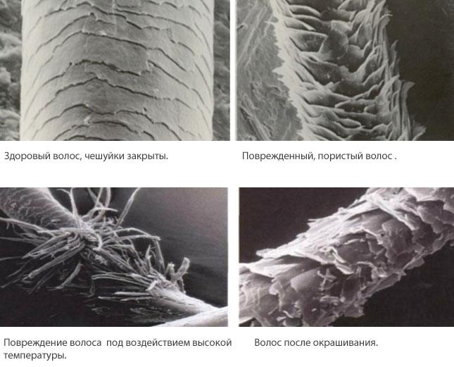 volosyi-pod-mikroskopom