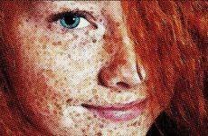 Что такое веснушки, дефект кожи или заболевание?