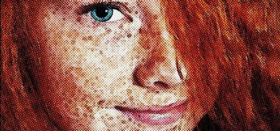 Что такое веснушки, дефект кожи или заболевание